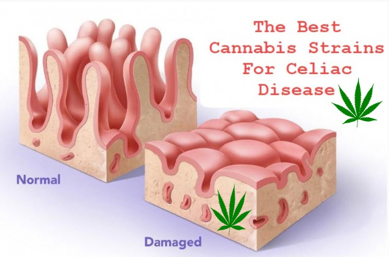 Top Cannabis Strains for Celiac Disease