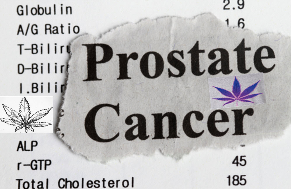 Cannabis for Prostate Cancer Gives Doctors New Weapons