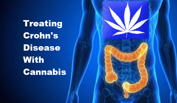 Cannibus Could Prove Effective For Inflammatory Bowel Diseases