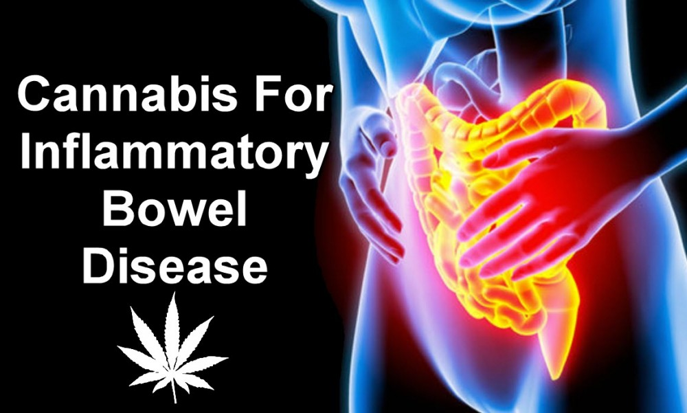 CANNABIS FOR BOWELS