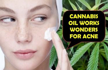 CANNABISACNE - Does Treating Acne Naturally with CBD Oil Actually Work?