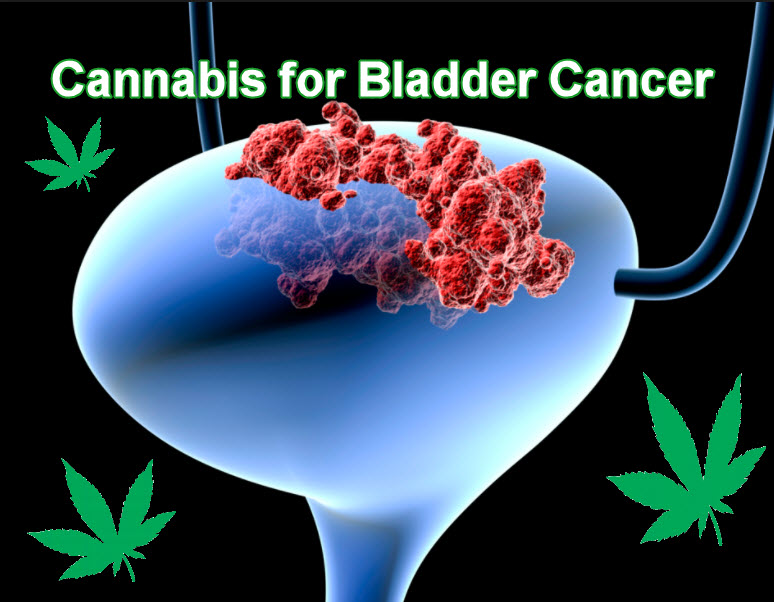 MEDICAL MARIJUANA FOR BLADDER CANCER