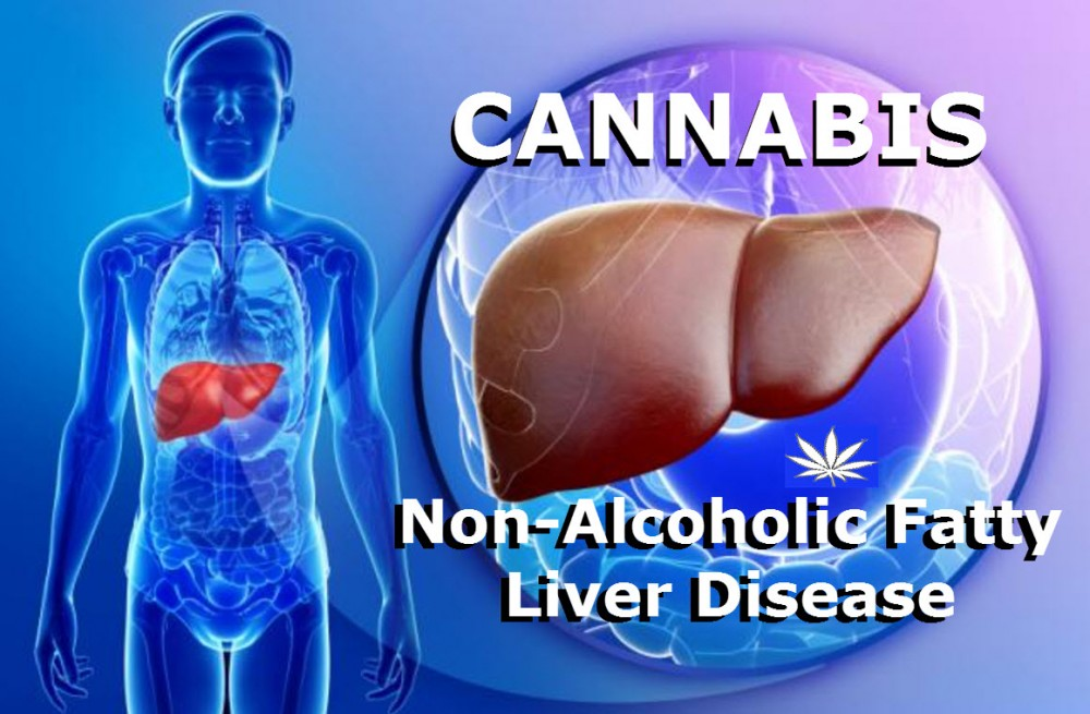 CANNNABS FOR NON FATTY LIVER