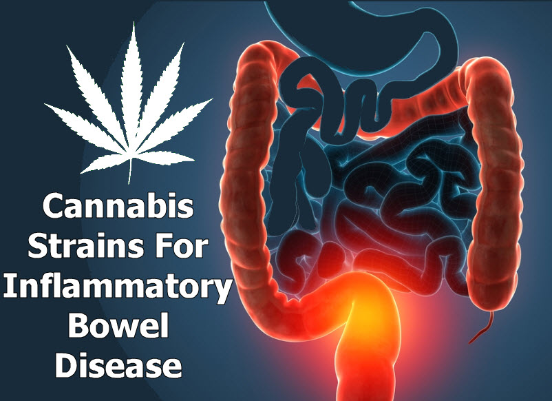 CANNABIS FOR BOWEL DISEASE