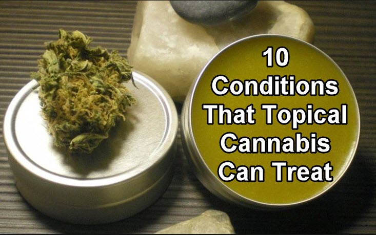 WHAT ARE CANNABIS LOTIONS GOOD FOR TREATING