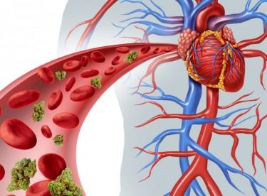 cannabis and cardiovascular disease