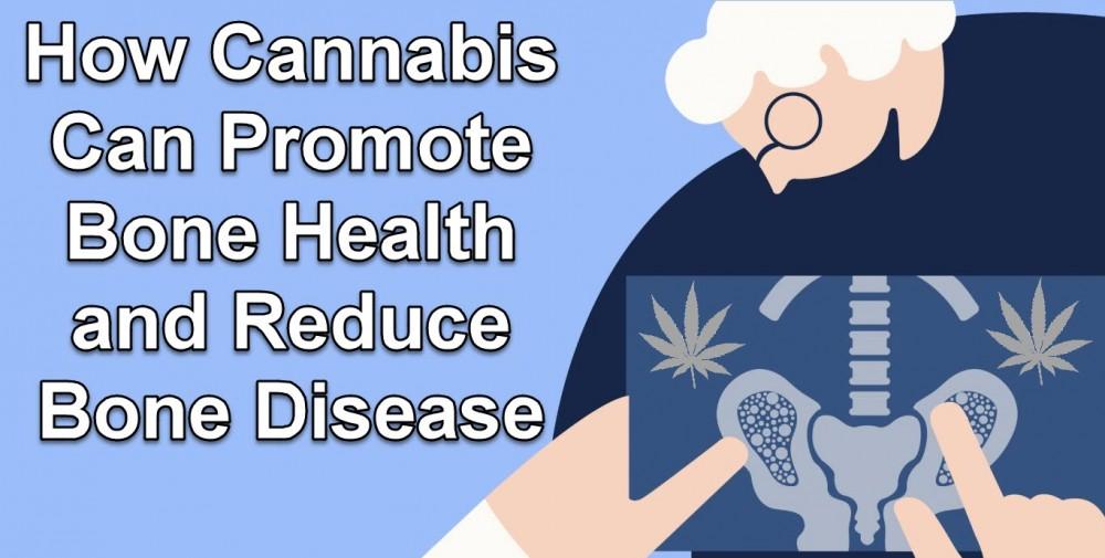 CANNABIS PROMOTES BONE HEALTH