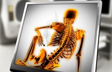 cannabis for joint pain arthritis