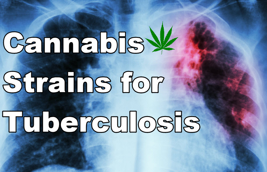 cannabis strains for TB