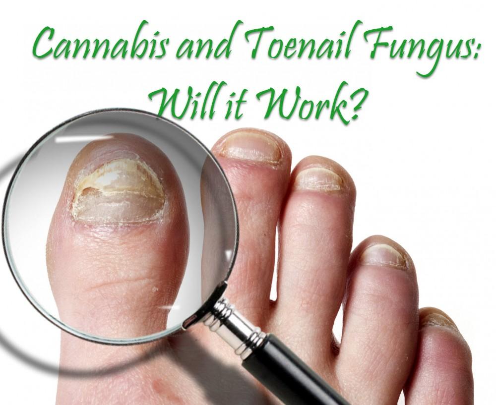 cannabis for toenail fungus