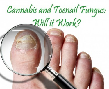 CBD FOR TOENAIL FUNGUS