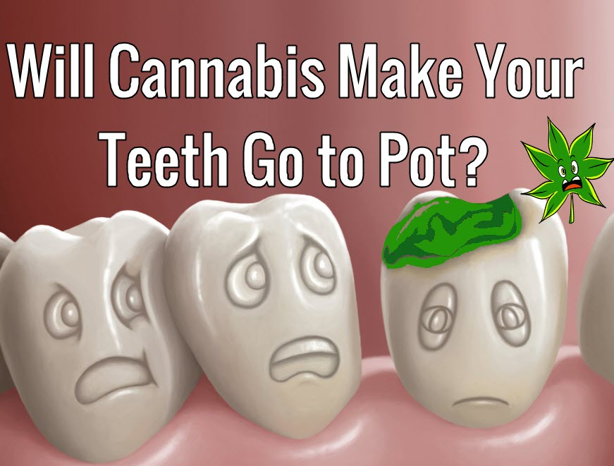 CANNABIS TOOTH DECAY