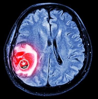 sativex for brain tumors