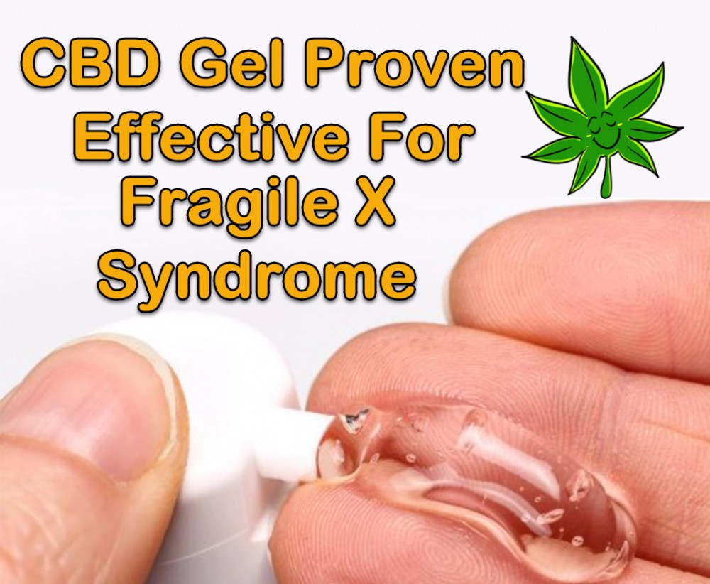 cbd for fragile x syndrome