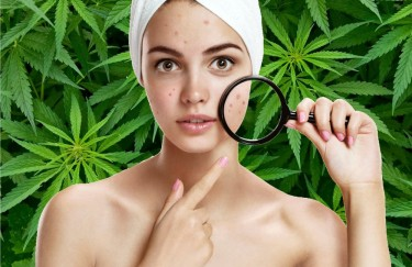 cbdoilforacne - Does Treating Acne Naturally with CBD Oil Actually Work?