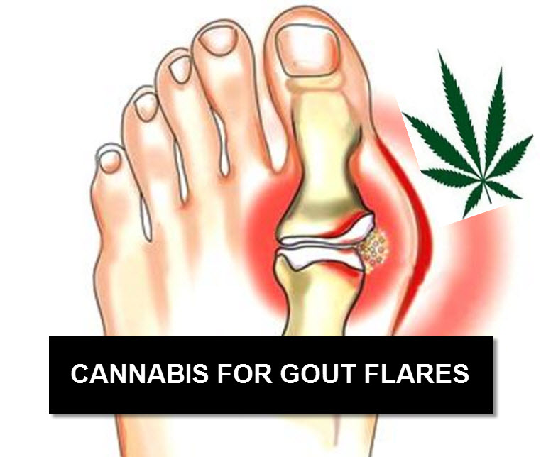 CANNABIS FOR GOUT
