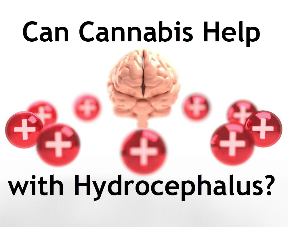 marijuana for hydrocephalus