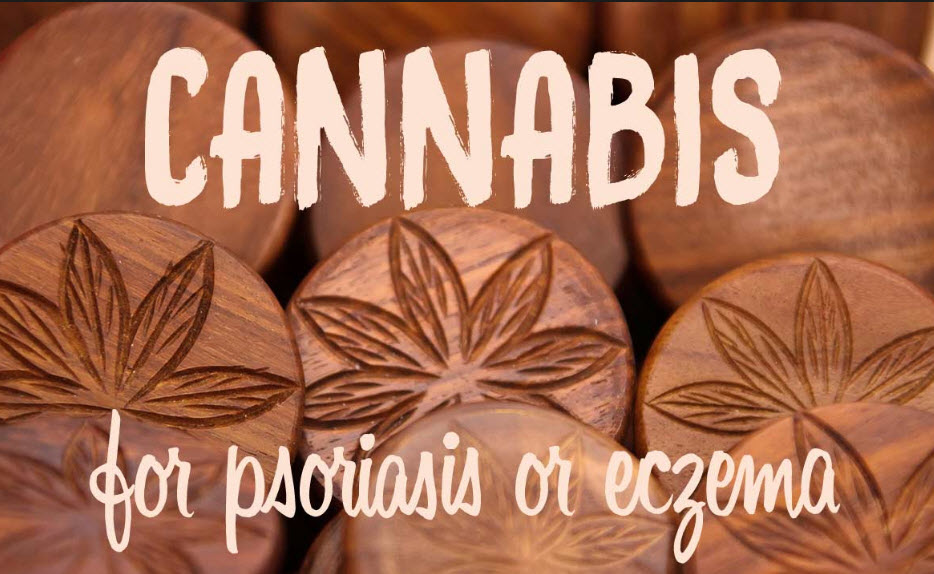 CANNABIS CREAMS AND PSORISIS