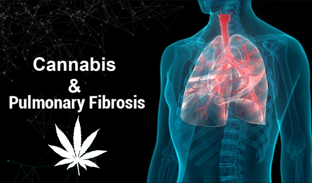 PULMONARY FIBROSIS AND CANNABIS