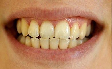 strained teeth